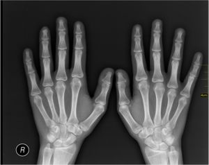 9 Interesting X Ray Facts
